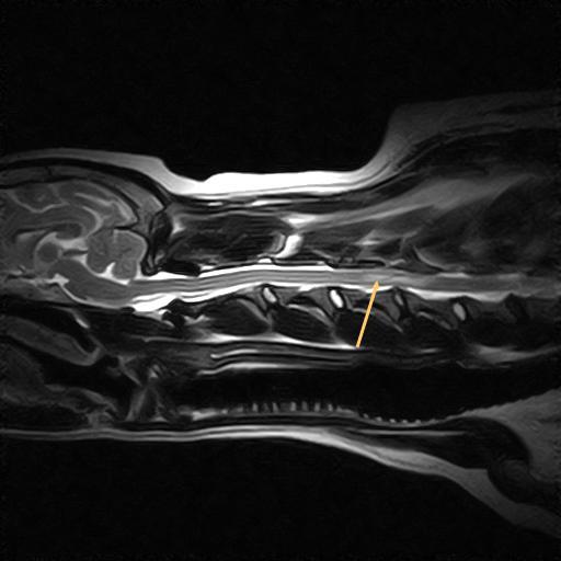 Rückenmarkinfarkt in der Halswirbelsäule eines Mischlings; Längsschnitt, T2-Wichtung;
